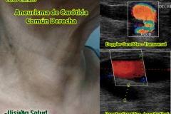 aneurisma-carotideo