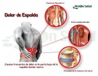 Dolor de Espalda, un síntoma, muchas causas