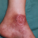 Ulcera en el Pie del Diabético
