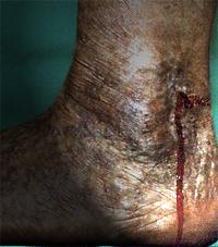 Hemorragia de Vena Varicosa en la Pierna
