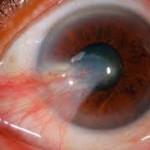 Las carnosidades en el ojo pueden quitarle la visión a un paciente