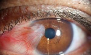 Pterigión, popularmente conocido como carnosidad en el ojo