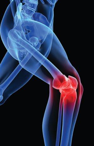 Causas y tratamiento del dolor de rodilla