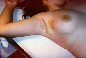 Mastectomía Parcial Oncológica