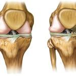 Artrosis de rodilla, una enfermedad que se puede prevenir
