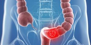 En cáncer de colon prevención es la palabra clave