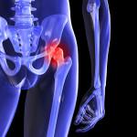 El dolor de cadera puede ser por osteoartrosis o incluso fracturas de cadera