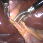 Operación de Vesícula por Laparoscopia