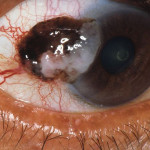 Cáncer del Ojo. Melanoma