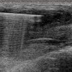 PAAF Tiroides