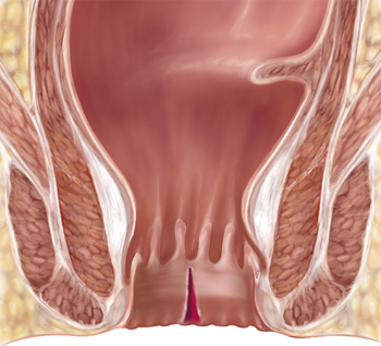 ¿Qué es la fisura anal?
