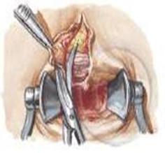Cirugía de la fisura analCirugía de la fisura anal