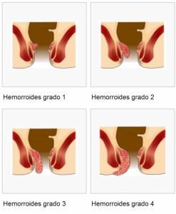 Clasificación de las Hemorroides