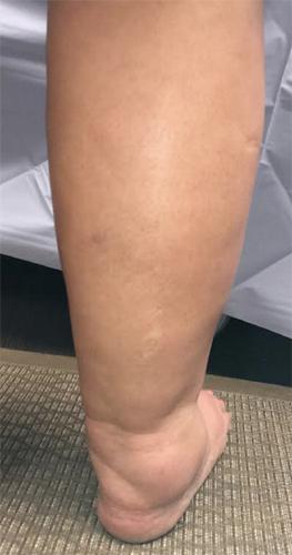 Causas de piernas hinchadas